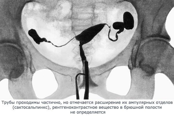 забиты трубы гинекология как лечить