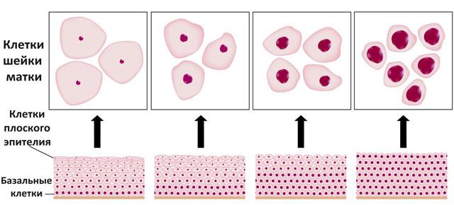 дисплазия шейки матки 1, 2, 3 степени