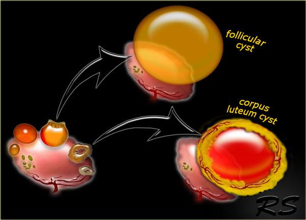 симптомы функциональной кисты яичника