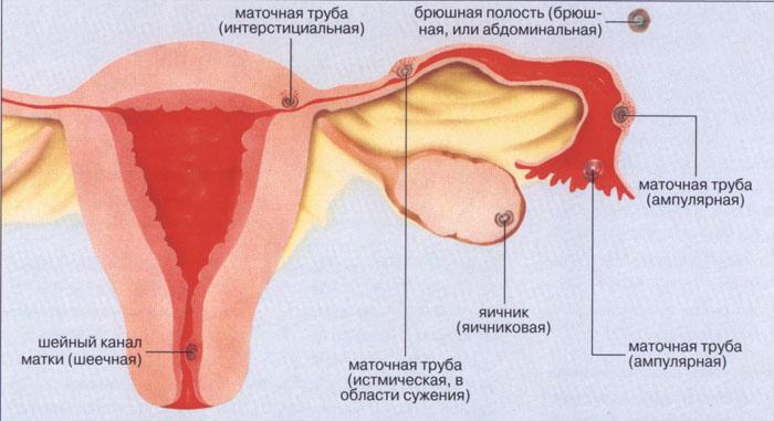 Что значит внематочная беременность и чем она опасна