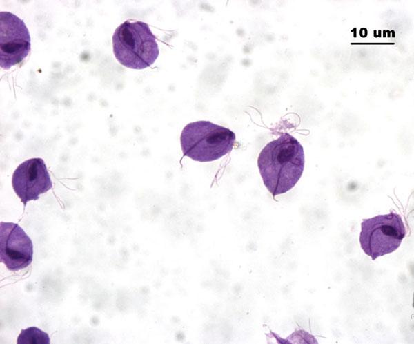 Возбудитель инфекции трихомониаза и его влияние на организм человека