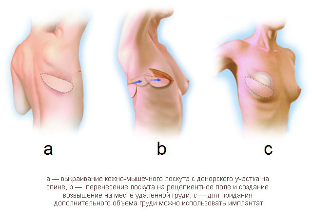 Схема реконструкции молочной железы с помощью кожно-мышечного лоскута