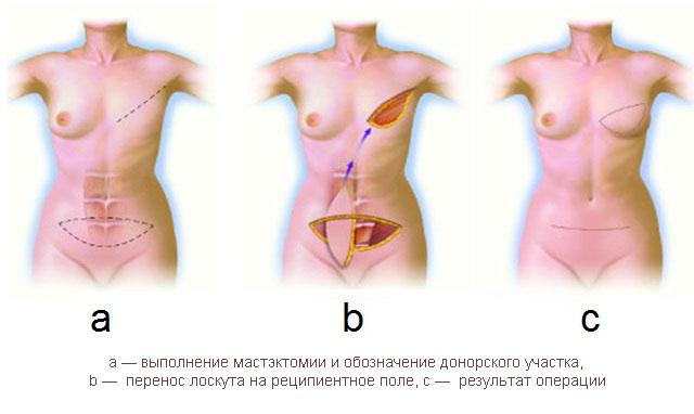 Схема реконструкции молочной железы TRAM – лоскутом