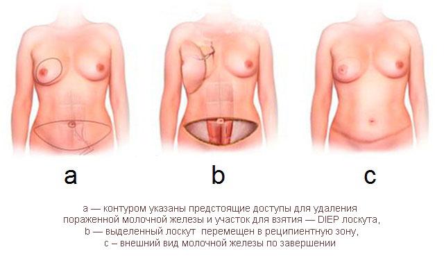 Схема реконструкции молочной железы DIEP-лоскутом