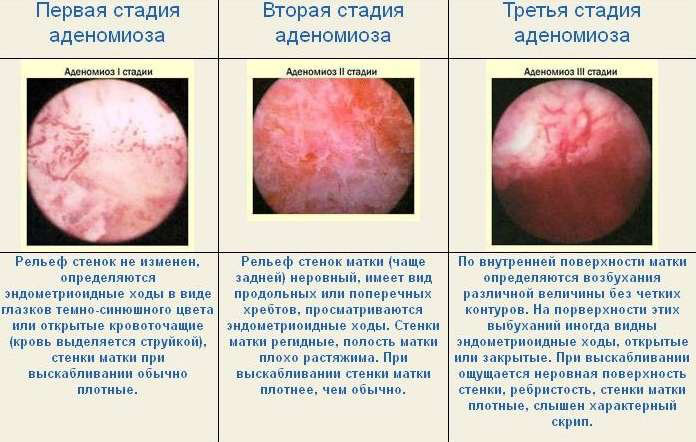 adenomioz tela matki