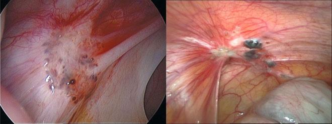 Эндометриоидные очаги