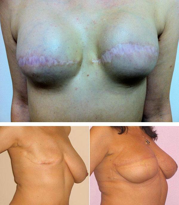 Обвисшая силиконовая грудь фото