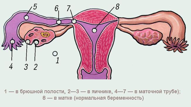 Болят ли во время беременности яичники