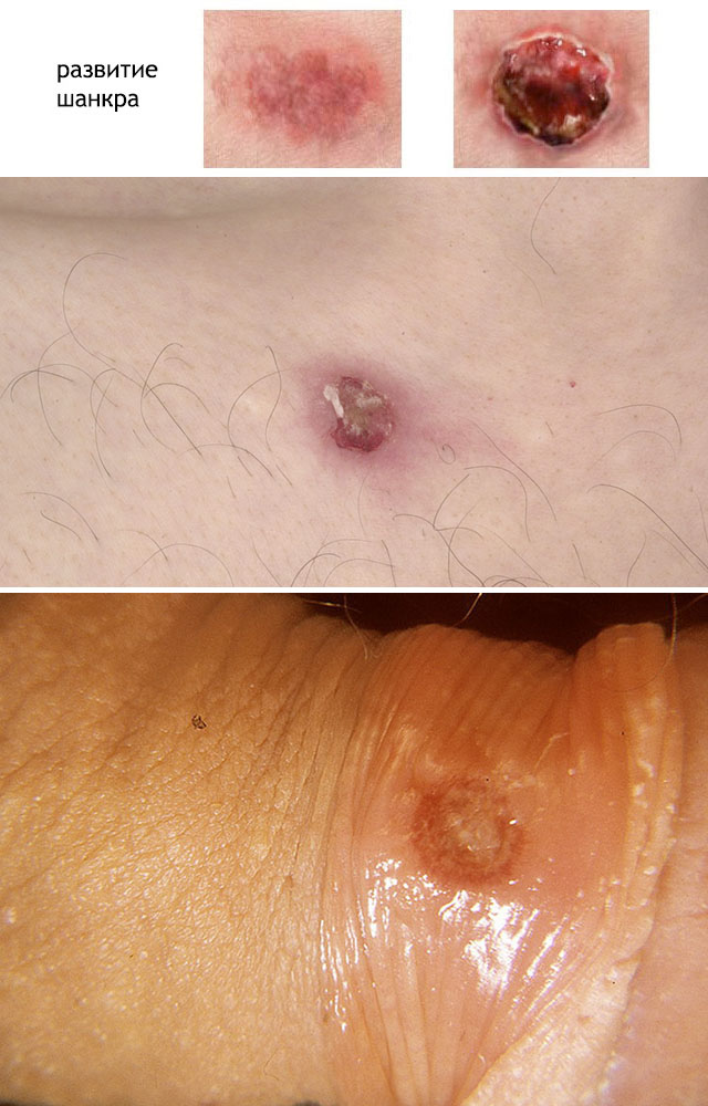первичный сифилис симптомы