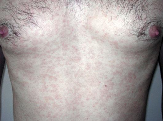 Розеолы при вторичном сифилисе