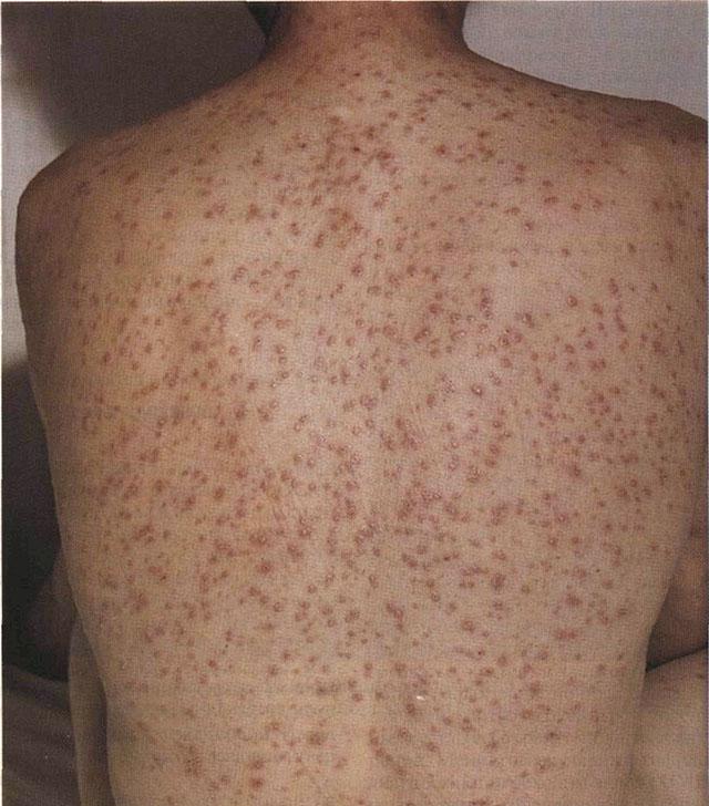 Папулезный сифилид при вторичном периоде сифилиса