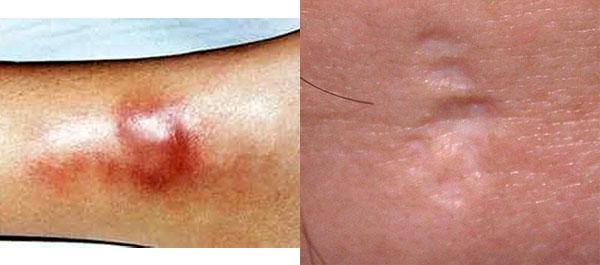 1. Бугорковый сифилид 2. Рубцовая атрофия