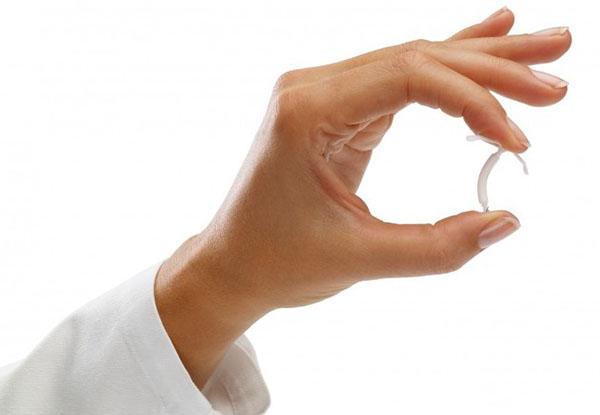 Внутриматочная гормональная система контрацепции