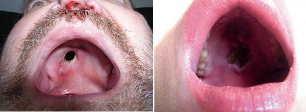 третичный сифилис во рту