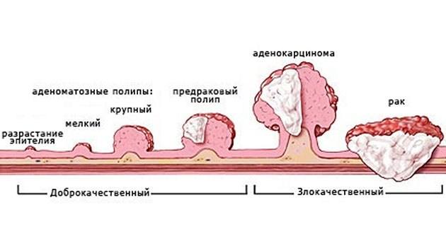 Аденоматозный полип эндометрия