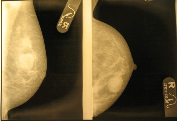 Выявление фиброаденомы при рентгеновской маммографии