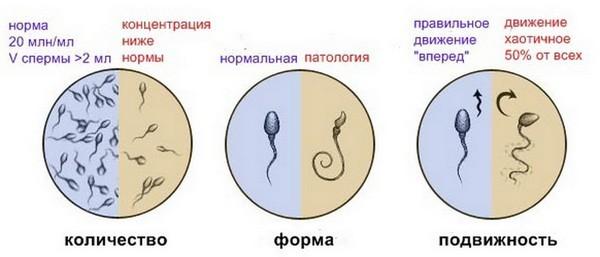 Превышенны патологические сперматозоиды