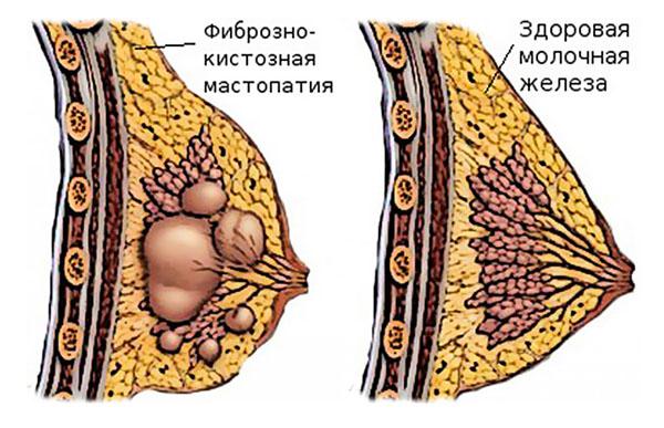Что значит диффузная мастопатия