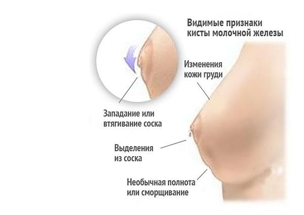 Симптомы кисты молочных желез