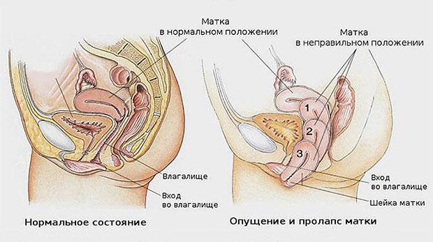 Симптомы опущения матки