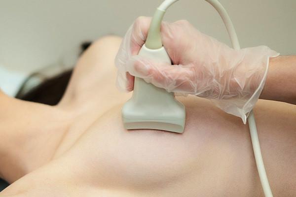 Внутрипротоковая папиллома молочной железы – операция, лечение