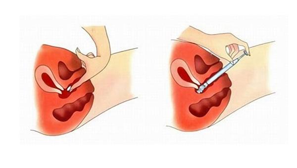 kak-polzovatsya-vaginalnimi-svechami-video