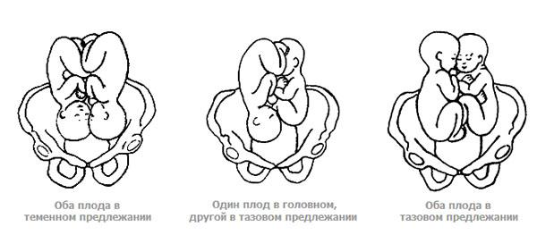 Многоплодная беременность: причины и признаки, ведение и ролы