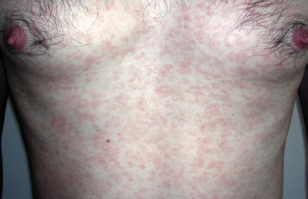 Пути передачи вторичного сифилиса — Советы медиков