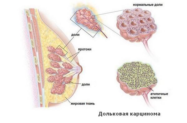 Дольковая карцинома
