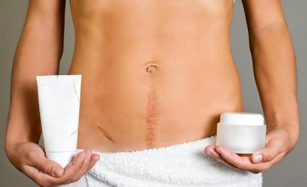 Кесарево сечение: показания, как делают операцию, восстановление, последствия