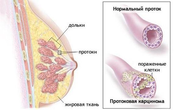 Протоковая карцинома