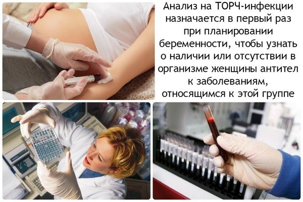 Анализы на ТОРЧ-инфекции