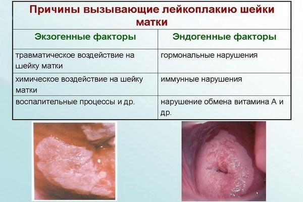 Причины возникновения лейкоплакии
