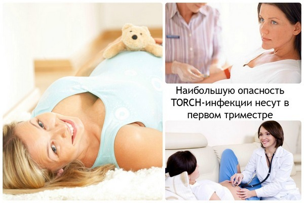 Торч инфекции что это при беременности 3
