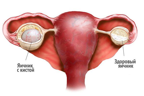 Диагностика ретенционной кисты яичника