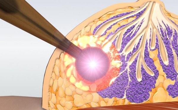Лучевая терапия при карциноме груди