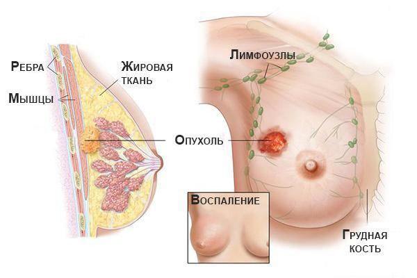 Симптомы карциномы молочной железы