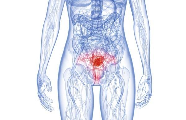 Симптомы опухоли в матке