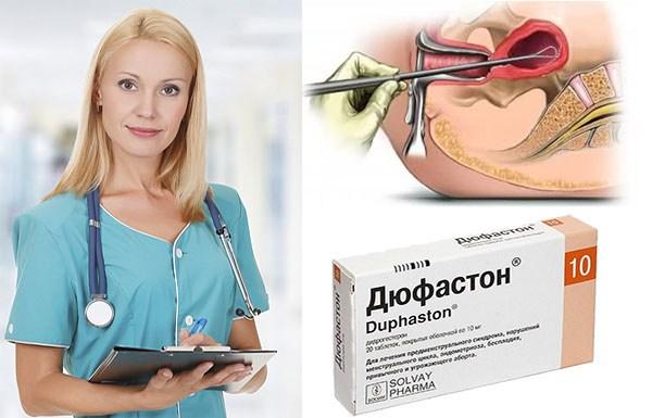 Лечение полипозной гиперплазии эндометрия