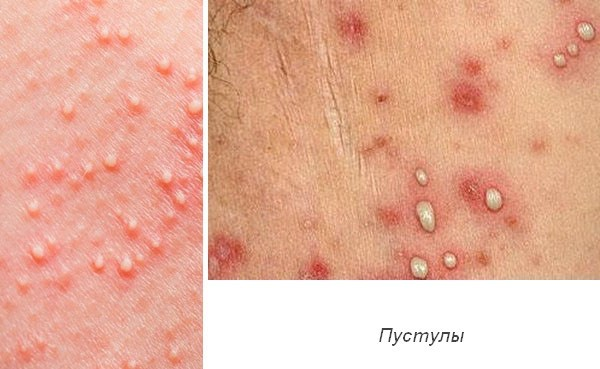 сифилис фото сыпи