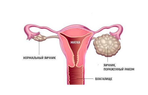 Рак яичников: причины, симптомы, лечение