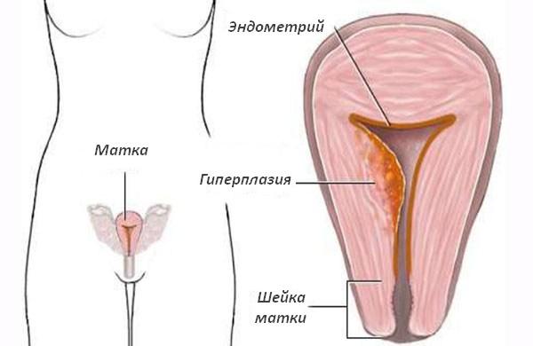 Аденоматозная гиперплазия эндометрия