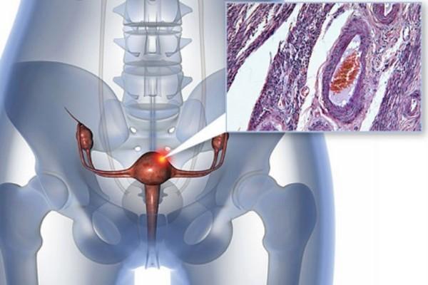 Неоперабельный рак матки лечение