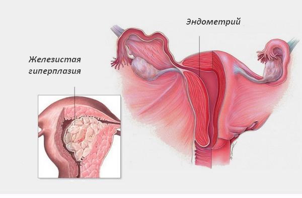 Мази для лечения остеохондроза шеи