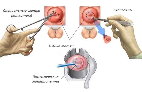Биопсия шейки матки — Mamapedia