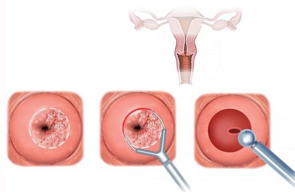 Кольпоскопия и биопсия шейки матки что это такое