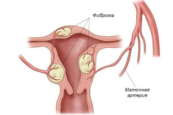 Что такое фиброма матки