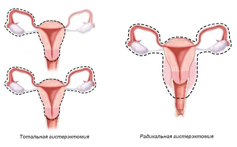как долго болит живот после удаления матки