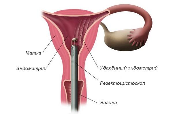 Как проводится абляция эндометрия