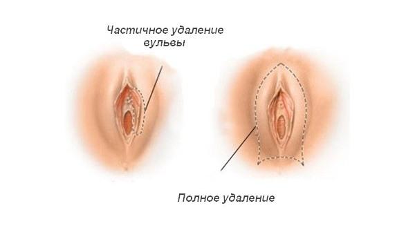 porno-glubokaya-foto-vulv-zhenshin-u-ginekologa